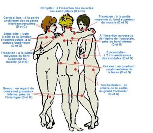 3OCWrJLm-fibromyalgie-s-
