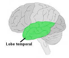 lobe-temporal